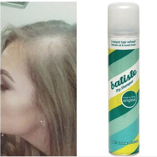Dry shampoo bald patch